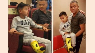 Photo of 蒙古男童「長短腳15公分」 最想跟好朋友賽跑