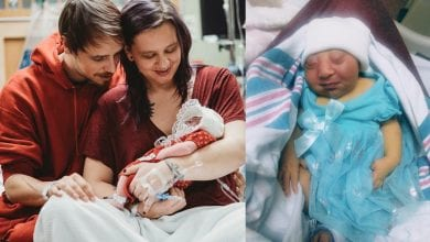 Photo of 美婦懷無腦女兒堅持不墮胎 離世後捐出器官助病童