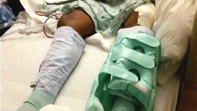 Photo of 〈同性戀是不是天生的?〉經歷恐攻槍擊、五次手術,死亡邊緣重生的Angel:從同性戀回轉需要支持和勇氣