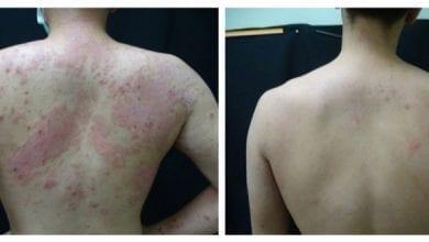 Photo of 異位性皮膚炎讓人愁 新藥可改善75%