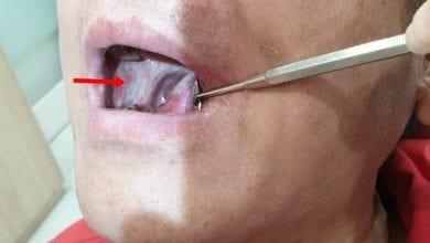 Photo of 口腔破洞三週不癒竟是癌 5徵兆分辨癌前病變