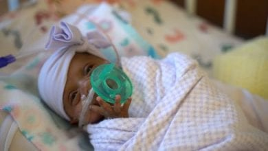Photo of 美女嬰出生僅「一顆蘋果重」 全球最小早產兒終於出院了!