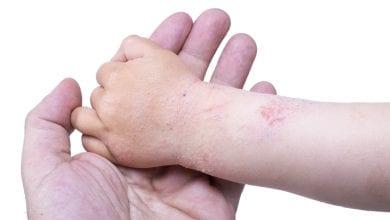 Photo of 濕疹皮膚癢有解 中醫加入「這一味」解毒抗發炎