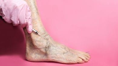 Photo of 久站成疾!靜脈曲張誤診「烏腳病」 隨便美容險截肢