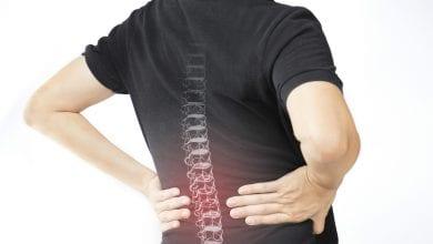 Photo of 50個青少年就1人脊椎側彎 醫:有3症狀要警覺