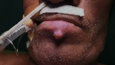 Photo of 嘴唇邊冒「大痘痘」好困擾 男子檢查竟是末期腎臟癌
