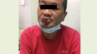 Photo of 從事這類工作「唇癌」容易找上門 醫:4症狀是警訊