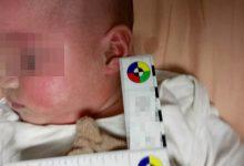Photo of 5月大男嬰「過敏性休克」險要命 醫:3種食物最危險