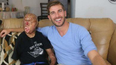 Photo of 奇蹟真的存在! 全身80%被燒傷  美16歲少年許願做「勵志演說家」