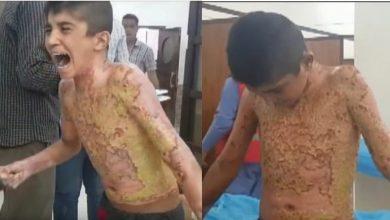 Photo of 土耳其猛轟庫德族   男童遭白磷灼傷哭喊「別再燒了」!