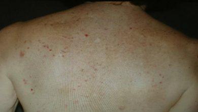Photo of 免疫治療皮膚起紅疹別沮喪 研究:可多活42個月
