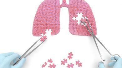 Photo of 單一標靶續命 「6關鍵因子」增肺癌患者存活率