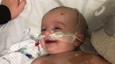 Photo of 14周嬰兒患罕見腫瘤陷昏迷 5天後奇蹟甦醒對著爸爸燦笑