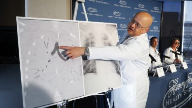 Photo of 美17歲少年吸電子煙「肺部都是疤」 緊急移植雙肺救命!