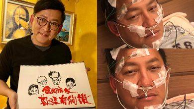Photo of 名廚詹姆士「這病」復發 醫:猝死風險增2.5倍