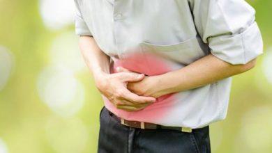 Photo of 大腸瘜肉切除「4年後再復發」 醫警告:這件事是危險誘因
