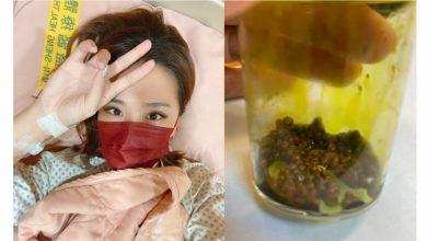 Photo of 小禎膽結石「痛到炸掉」 醫師透露:晚一天就完蛋