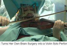 Photo of 小提琴手一邊拉琴一邊開腦部手術 原來是醫生要求的…(影)