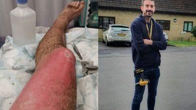 Photo of 電子煙在口袋爆炸! 英37歲男子左大腿3級灼傷