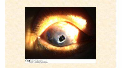 Photo of 別亂點!她青光眼…長期用類固醇藥水 右眼「破大洞」