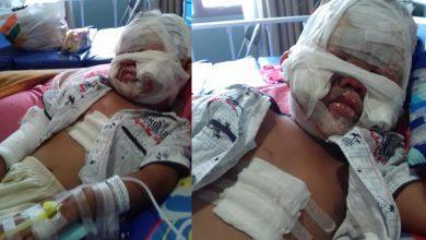 Photo of 家長注意!3歲男童持洗手液路過火源 轟1聲嚴重燒傷住院