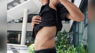 Photo of 17歲高中生「賣腎買哀鳯」 9年過去了…他慘曝現況怨:毀我一生