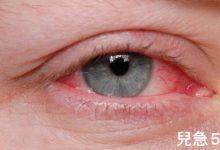 Photo of 新冠肺炎新症狀!3%病患「粉紅眼」 防疫別鬆懈