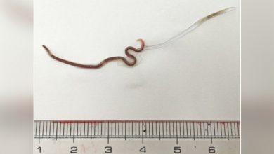 Photo of 櫻花妹吃生魚片5天後喉嚨痛 醫拉出4公分寄生蟲「還在蠕動」