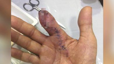 Photo of 洗蝦被刺傷!男食指被「食肉菌」啃蝕截肢 再晚1天就沒命