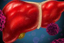 Photo of 數字正常不代表肝臟健康! B肝病毒感染者恐惡化為肝癌
