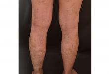 Photo of 類固醇副作用大! 異位性皮膚炎5策略換膚