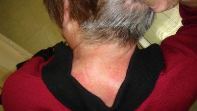 Photo of 資深演員皮肌炎病逝 不明紅疹、四肢無力要當心