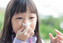 Photo of 小孩厚斗牙齒亂 竟是鼻過敏引起